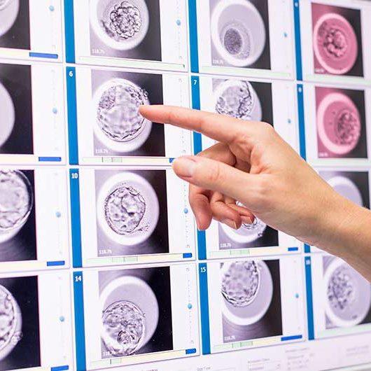 Embryoscope incubadora timelapse FIV fecundacion in vitro Barcelona